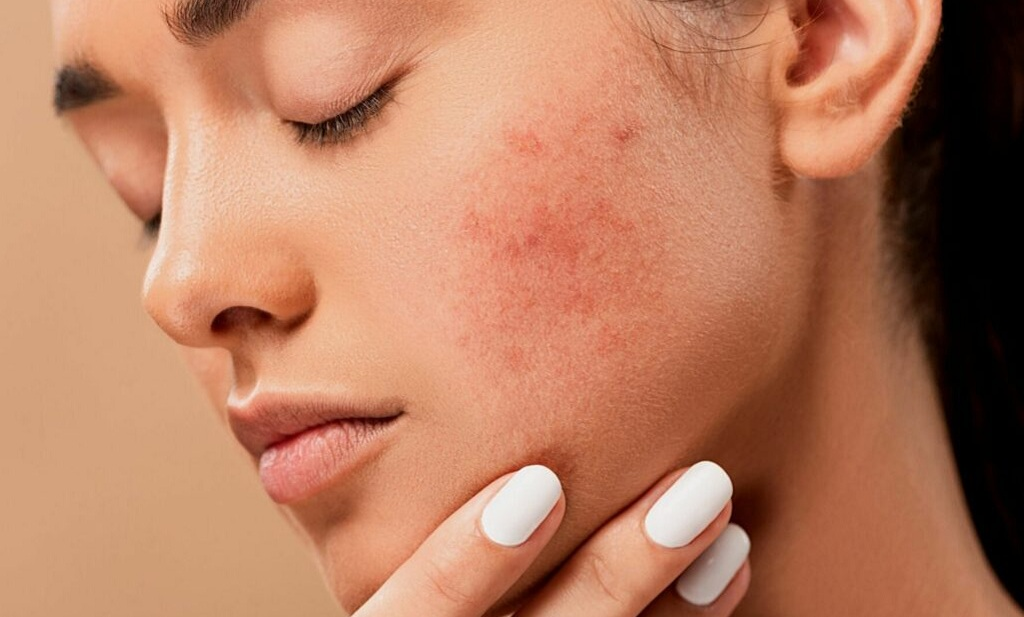 Makeup Ideas That Work Best for Acne Prone Skin
